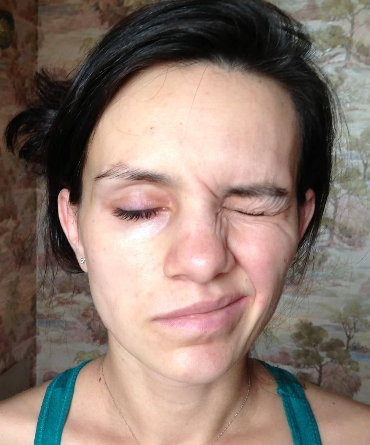 для невропатия лицевого нерва фото нашем